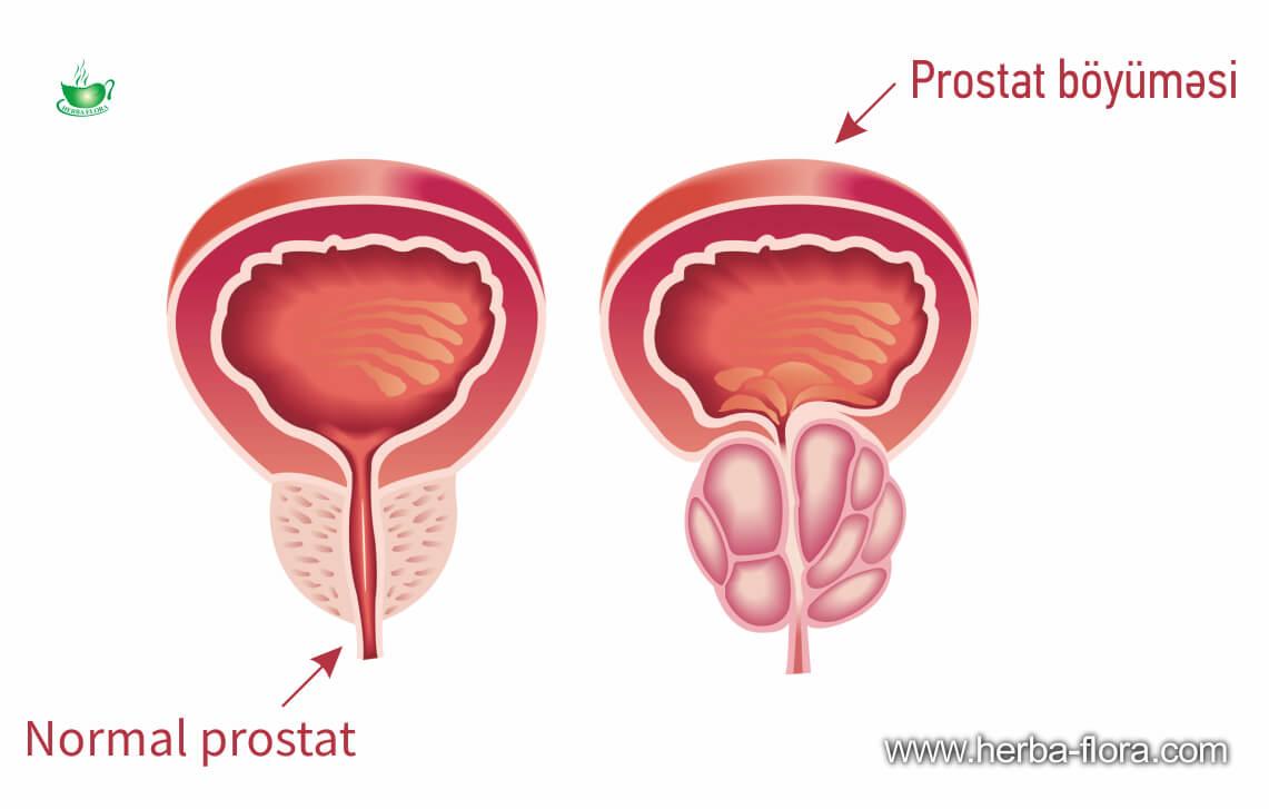 Prostat vəzin hiperplaziyası