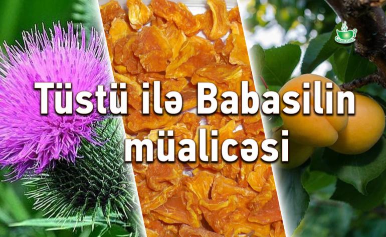 Tüstü ilə Babasilin müalicəsi.