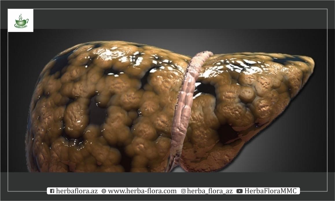 Qaraciyər piylənməsi.